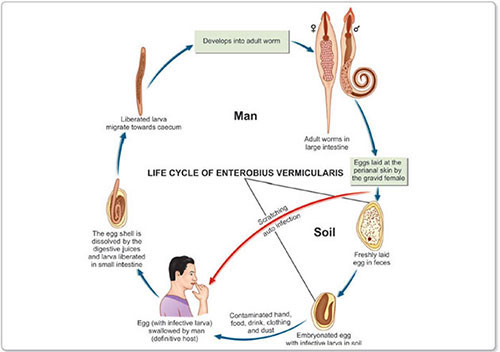 enterobius vermicularis retroinfection