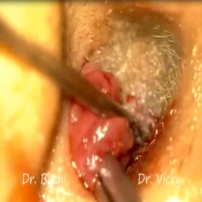 intratympanic steroid injection video