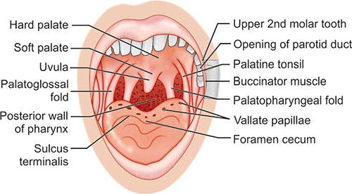 tonsillitis hipertónia