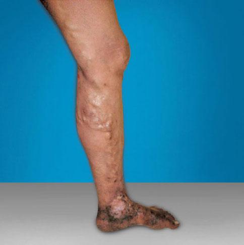 cum ajută sarea din varicoză cumpărați ciorapi ortopedice de la varicoză