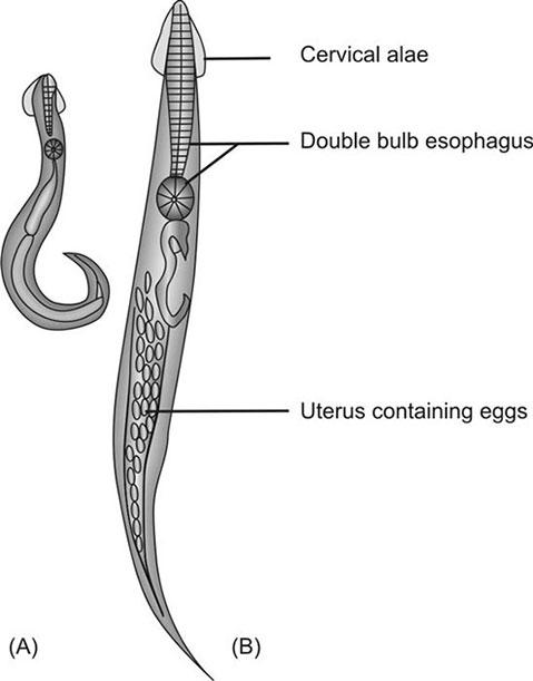 enterobius vermicularis gram stain
