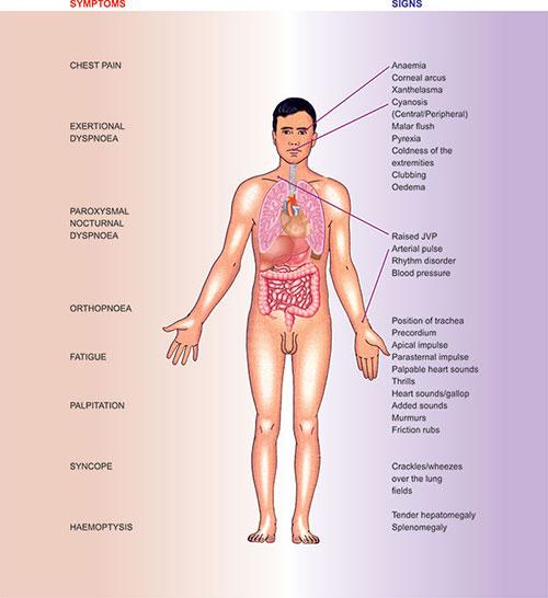 aorta aneurysma hipertónia)